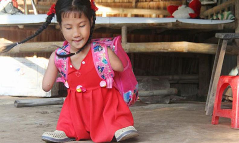 """Bé gái 8 tuổi với hình hài """"chim cánh cụt"""" đầy nghị lực với ước mơ làm bác sĩ"""