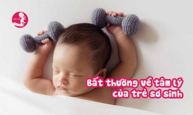 Những bất thường về tâm lý của trẻ sơ sinh